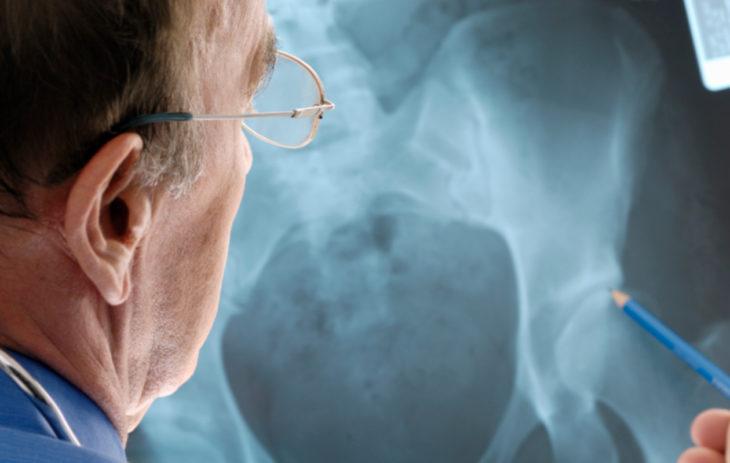 Osteoporoosi näkyy röntgenkuvissa.