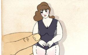 Lihavuusleikkaus