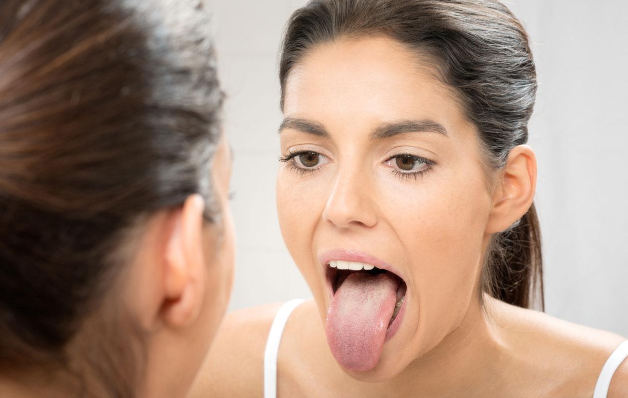 Kieli, kielisyöpä