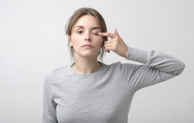 Raskaista luomista kärsivä yrittää usein kohottaa kulmakarvojaan, jotta luomi ei häiritsisi näkökenttää. Silloin silmäluomileikkaus voi tuoda helpotuksen.