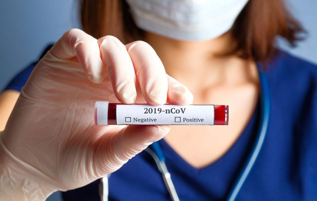 Uuden koronaviruksen aiheuttamaa tautia kutsutaan nimellä COVID-19. Lyhenne tulee sanoista corona, virus, disease.