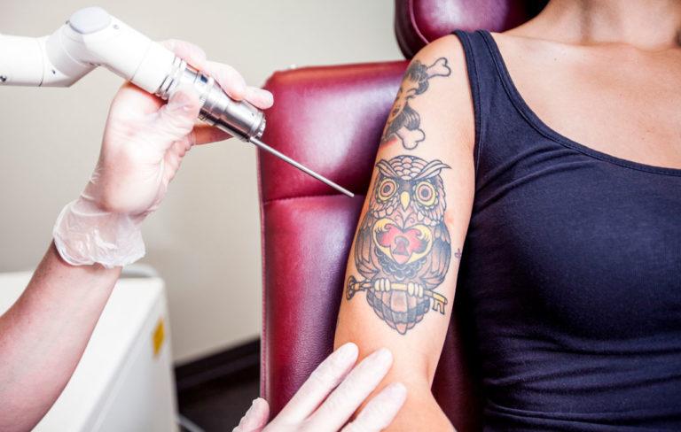 Tatuoinnin poisto meneillään naisen käsivarresta.