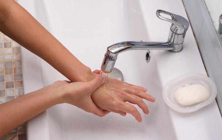 Ihminen huuhtelee palovamman saanutta kättä veden alla. Pihkavoide voi auttaa muun muassa lievien palovammojen hoidossa.