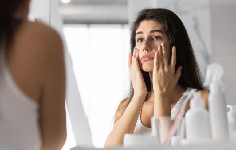 Perioraalidermatiitti eli suunympärysihottuma on etenkin nuorten naisten vaiva.
