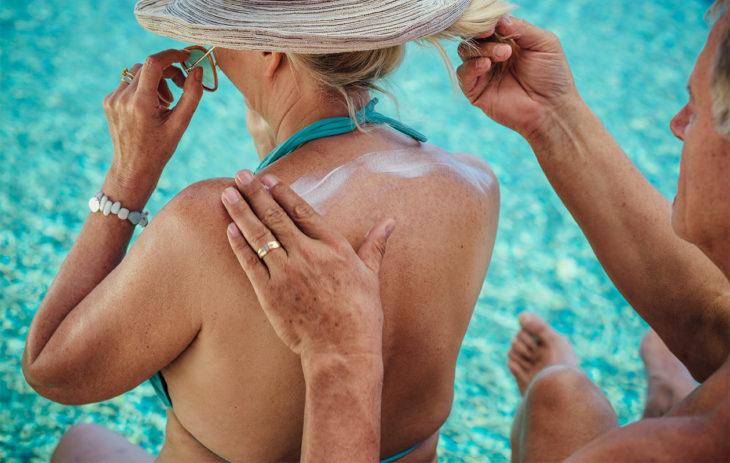 Ihminen rasvaa toisen henkilön yläselkää aurinkovoiteella. Aurinkokeratoosi eli aktiininen keratoosi on yhteydessä koko eliniän aikana saatuun UV-säteilyyn.