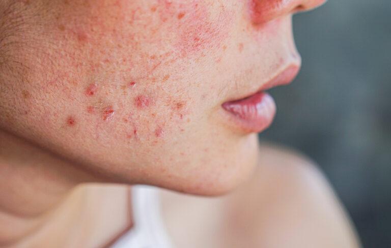 iho-ongelmia
