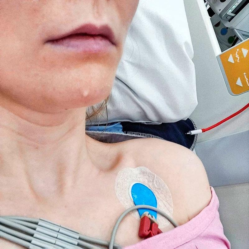 Sonja-Elina Tähtinen sairaalasängyssä letku rintaansa kiinnitettynä.