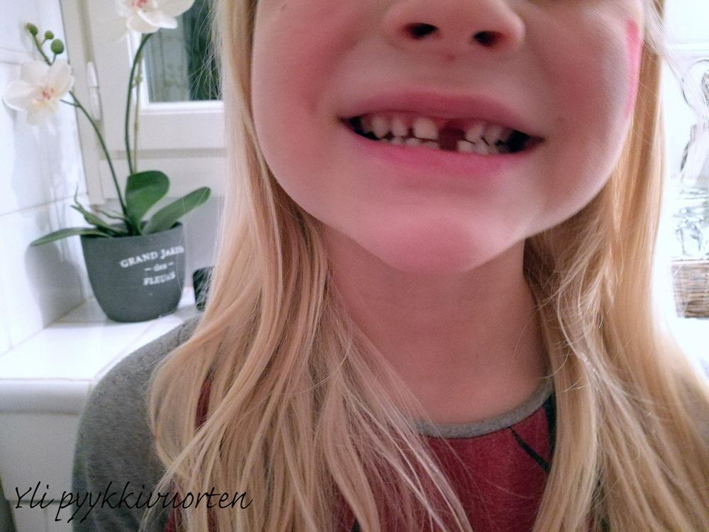 hampaiden heiluminen